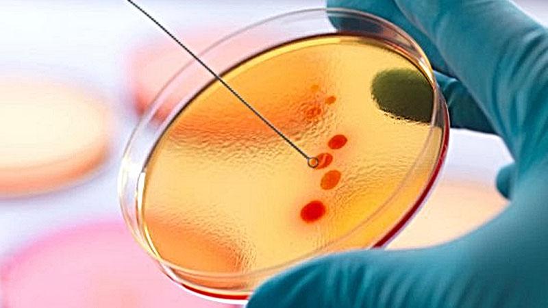 Бактерии начинают и выигрывают